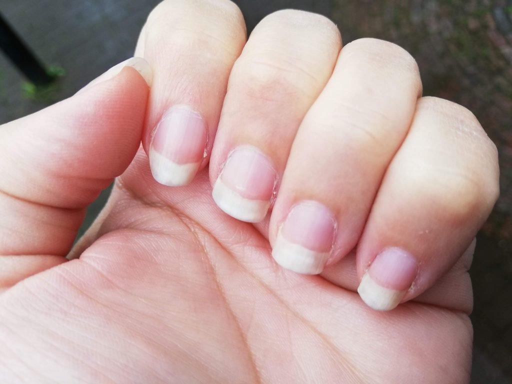 Pijnlijke nagelriemen