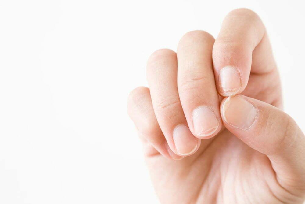 Nagelproblemen tijdens zwangerschap